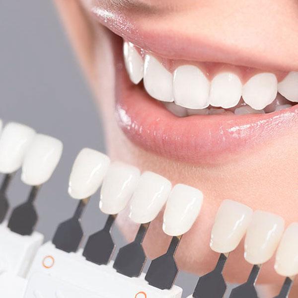 عوارض کامپوزیت دندان